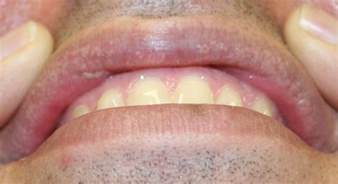 symptoms of herpes of the mouth picture 9