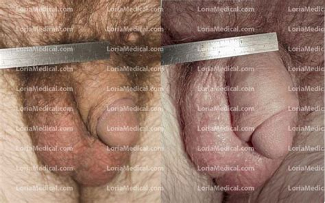 enlarged penis to 12 inch picture 9