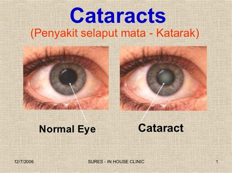katarata symptoms picture 2