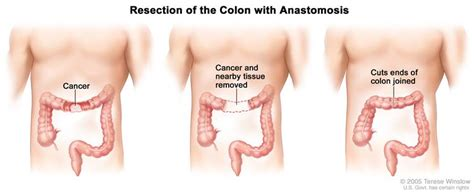 Patient refuses to have surgery for colon cancer picture 3