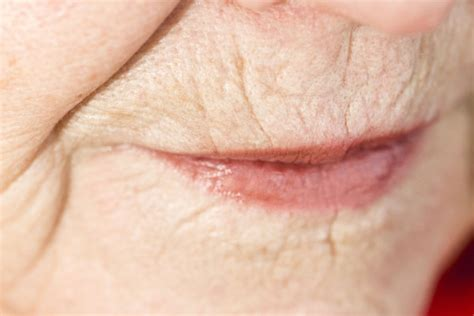 wrinkly spots on skin picture 13