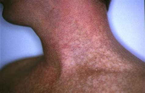 skin cancer example picture 5