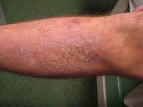 yeast infections skin picture 1