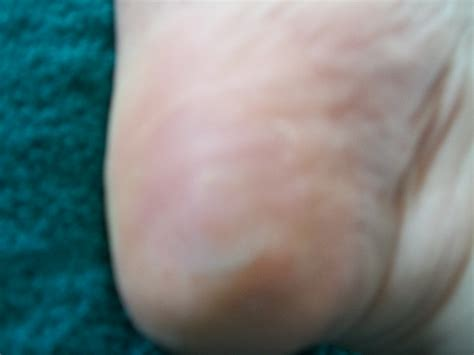 white vinegar and warts picture 19