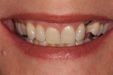 cuspid teeth picture 2