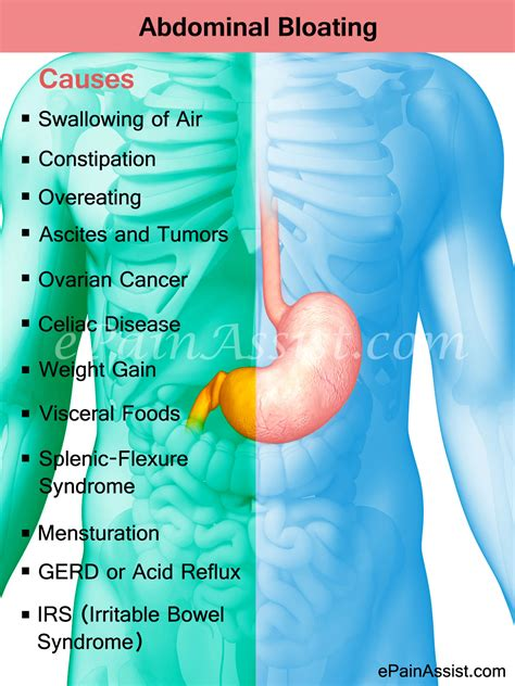 causes of cramping and pain and bloating and picture 5