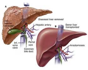 liver transplant pictures picture 5