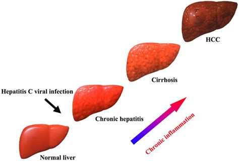 what are some symptoms of liver disease picture 4