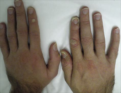 warts and antiepileptic drugs picture 5