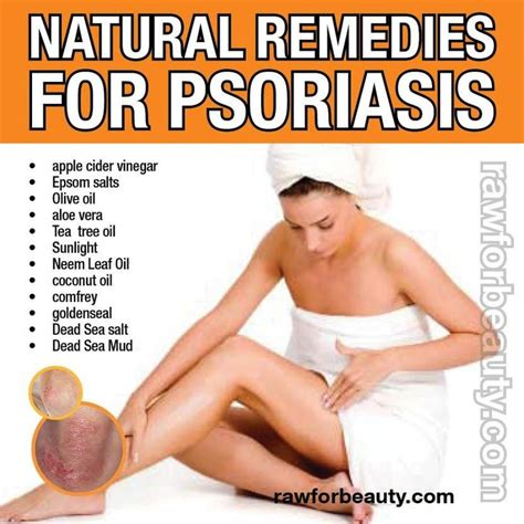 herbal remedies for psoriasis picture 3