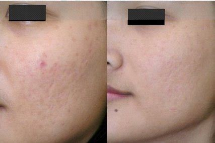 aldactone helping acne picture 6
