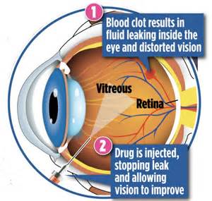 blood clot behind eye symptoms picture 1