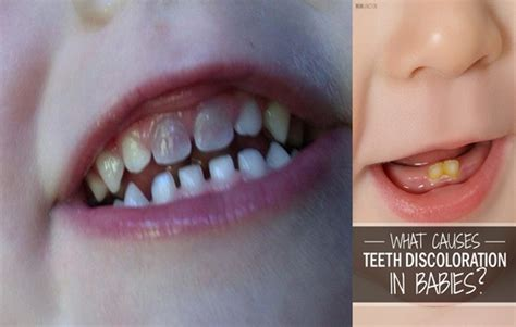 discolored teeth in children picture 9