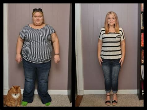will gastric byp work if i'm weight loss picture 1