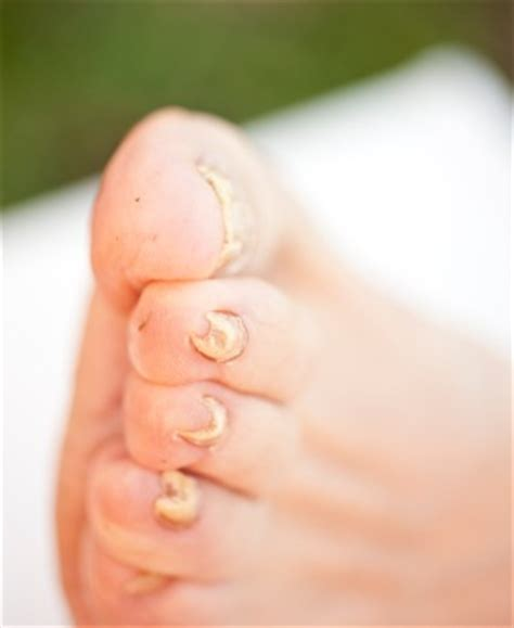 home remedy for toe nail fungus picture 7
