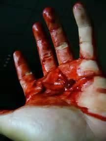 bleeding picture 14