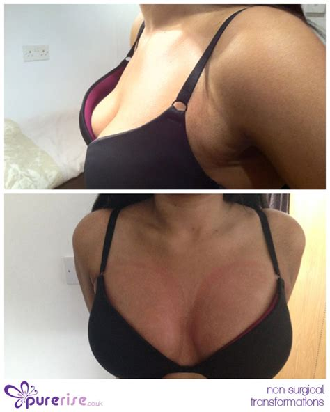 non surgical breast enhancement picture 5