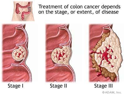 colon cancer in the muslce picture 7