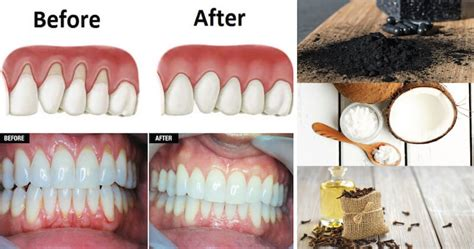 do canine teeth grow back picture 10