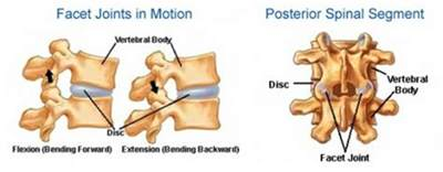 facet joint dysfunction picture 2
