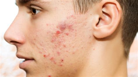 acne scars skin care picture 1