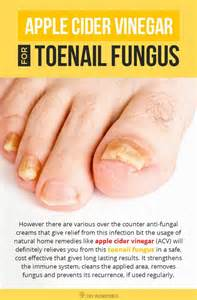 tea tree oil treatment for nail fungus picture 10