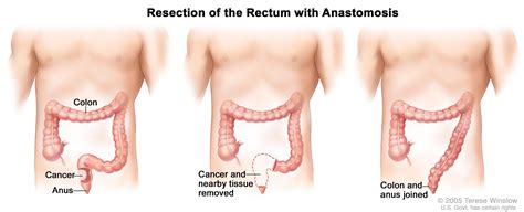 colon cancer and sex picture 5