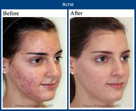 itchiness after acne treatment picture 14