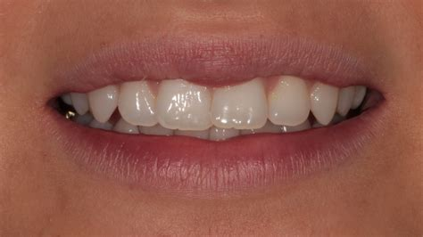 clear teeth brace picture 13