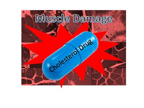 cholesterol medication muscle pain side effects picture 14