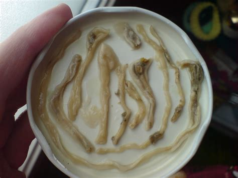 intestinal fungus picture 9