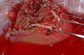 does anyone perform liver transplant for cancer picture 3