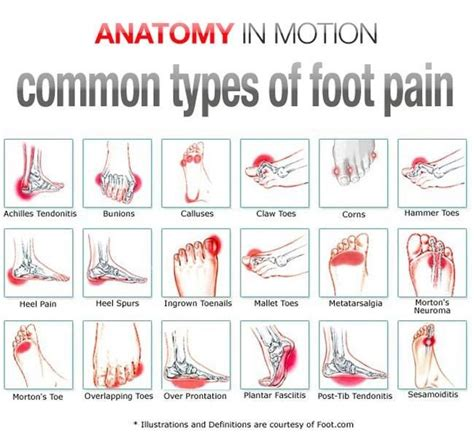 foot pain relief picture 7
