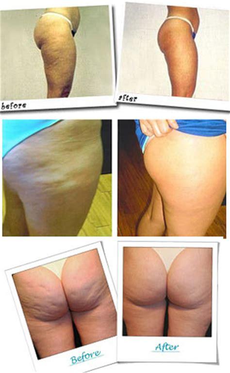 Revitol cellulite cream picture 3