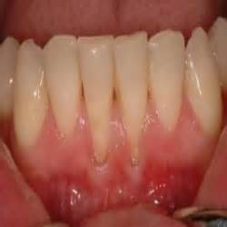 gum pain relief picture 9
