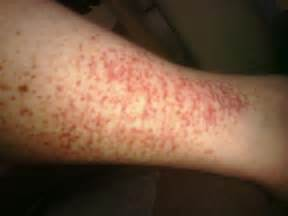 hives not red but itchy picture 11