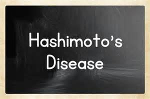 can people with hashimotos take thyromine picture 10