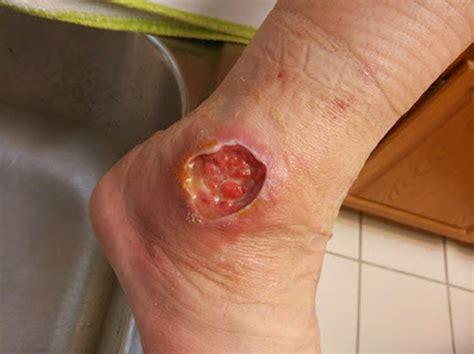 florida skin center picture 10