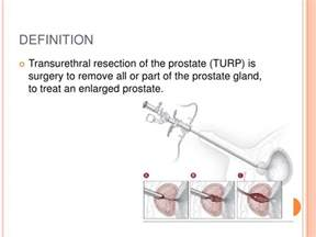 Transurethral resection of the prostate turp picture 5