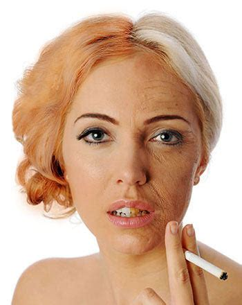 can nicotine cause yellowed skin picture 13