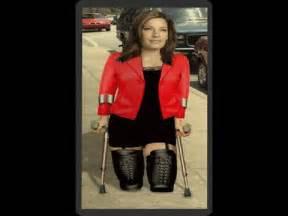 women leg amputees short stumps picture 3