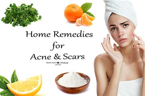 acne remedies picture 19