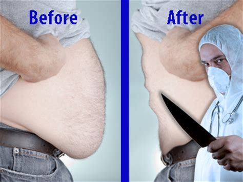 cellulite and new advances in the medical world to eliminate it picture 3