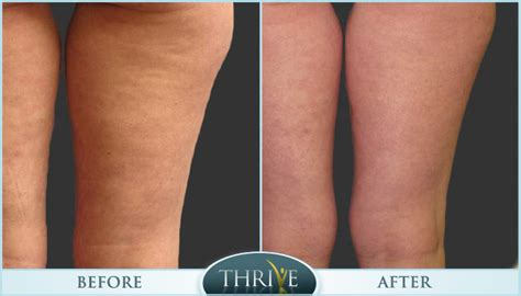 cellulite reducer picture 2
