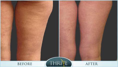 cellulite reduction picture 9