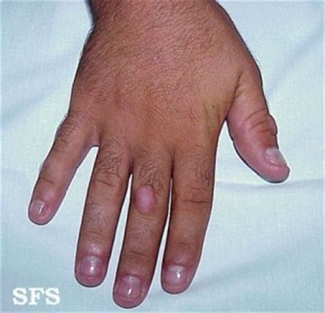 skin infection on knuckle picture 17