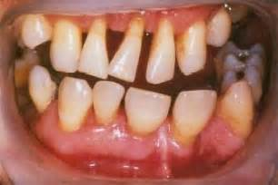 disorders of human teeth picture 7
