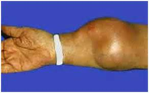 muscle tissue tumor picture 17