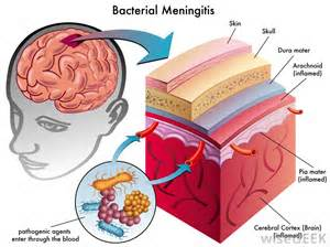bacterial meningjitis picture 2