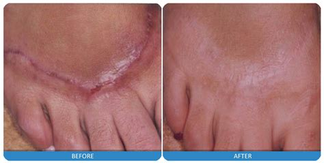new wart removal cream 2014 picture 9
